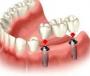 Протезирование зубов. Круглосуточная стоматология в Киеве